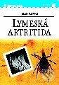 Peticenemocnicesusice.cz Lymeská artritida Image