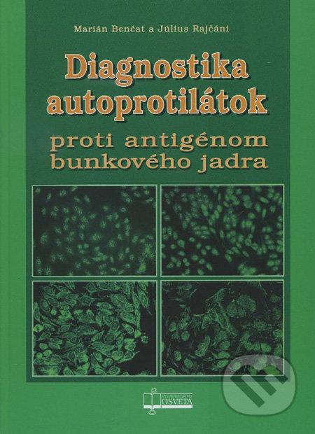 Excelsiorportofino.it Diagnostika autoprotilátok Image