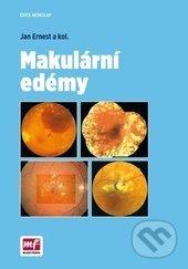 Makulární edémy - Jan Ernest