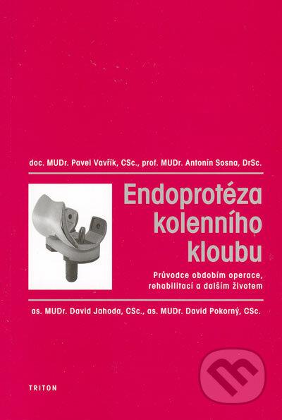 Venirsincontro.it Endoprotéza kolenního kloubu Image