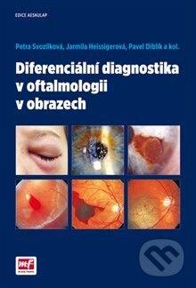Peticenemocnicesusice.cz Diferenciální diagnostika v oftalmologii v obrazech Image