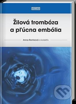 Excelsiorportofino.it Žilová trombóza a pľúcna embólia Image