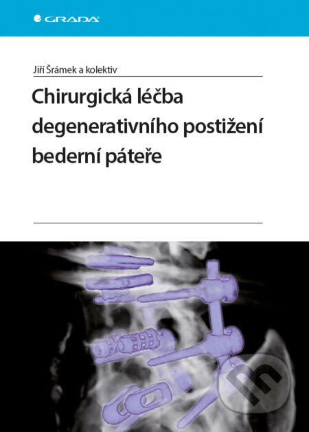 Chirurgická léčba degenerativního postižení bederní páteře - Jiří Šrámek a kolektiv