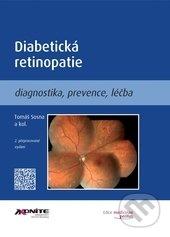 Fatimma.cz Diabetická retinopatie Image