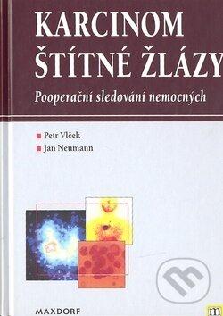Fatimma.cz Karcinom štítné žlázy Image