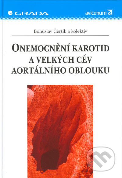 Fatimma.cz Onemocnění karotid a velkých cév aortálního oblouku Image