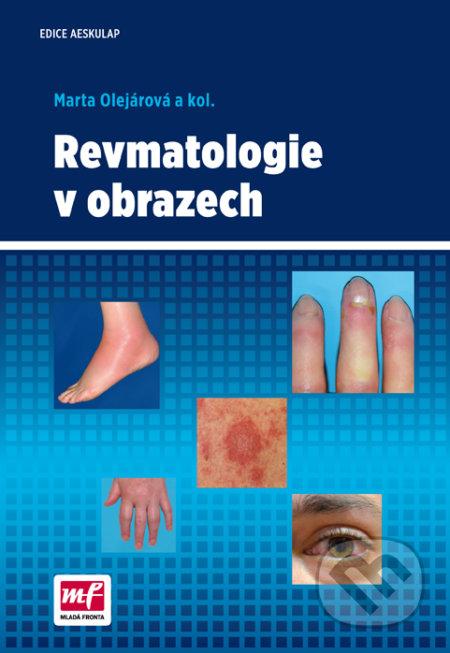 Revmatologie v obrazech - Marta Olejárová
