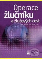 Peticenemocnicesusice.cz Operace žlučníku a žlučových cest Image
