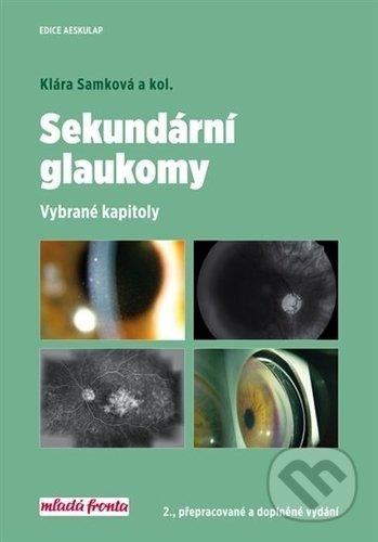 Interdrought2020.com Sekundární glaukomy Image