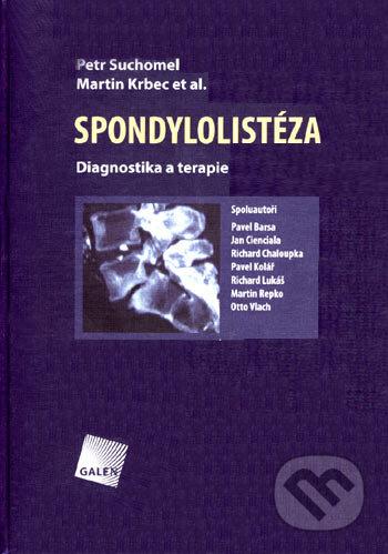 Fatimma.cz Spondylolistéza Image