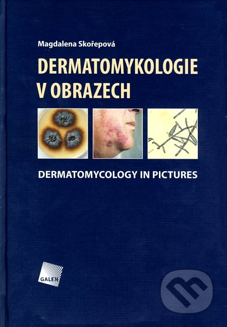 Venirsincontro.it Dermatomykologie v obrazech Image