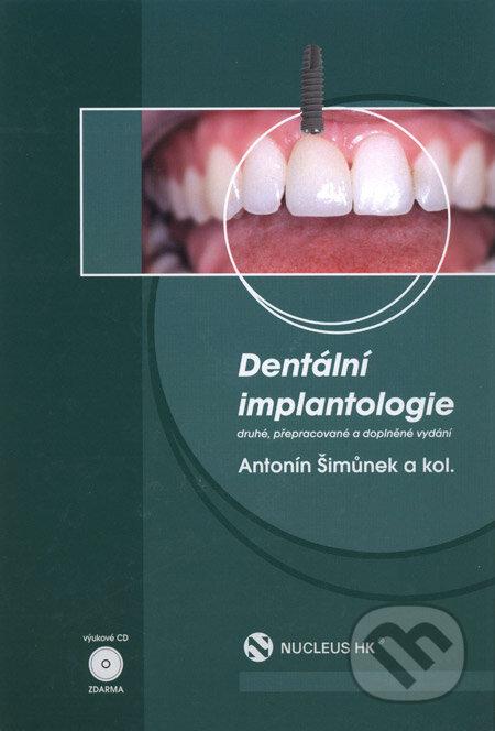 Fatimma.cz Dentální implantologie Image