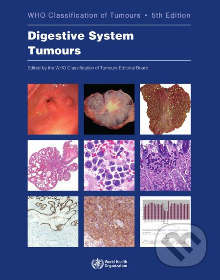 Who Classification of Tumours: Digestive System Tumours -